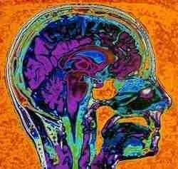 Brain in Color