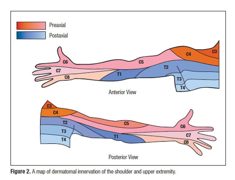 "Observed Patterns of Cervical Radiculopathy: How Often Do They Differ From a Standard, ""Netter Diagram"" Distribution?"