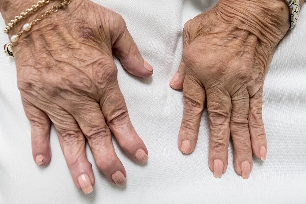Treatment of Rheumatoid Arthritis with Marine and Botanical Oils