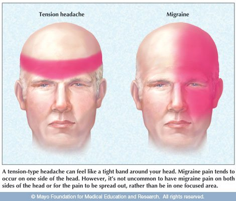 Prevalence of Neck Pain in Migraine and Tension-type Headache