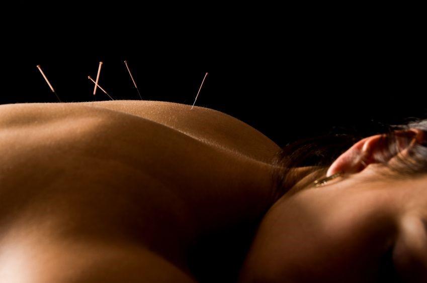 https://i2.wp.com/chirocarewellnessclinic.com/wp-content/uploads/2016/06/acupuncture-3.jpg?w=960