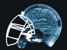Pediatric Concussion