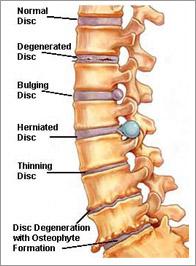 Low back pain classification