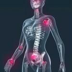 Low Frequency Sound Improves Fibromyalgia