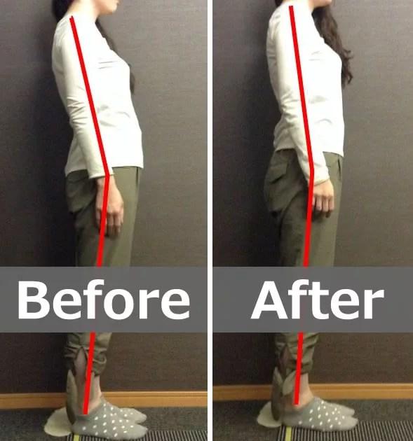 猫背の改善により腕が上がりやすくなった方のビフォー・アフター