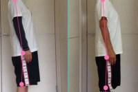 腰痛の脚の痺れを改善