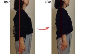 首の歪みが原因の肩こりが改善されたビフォーアフター