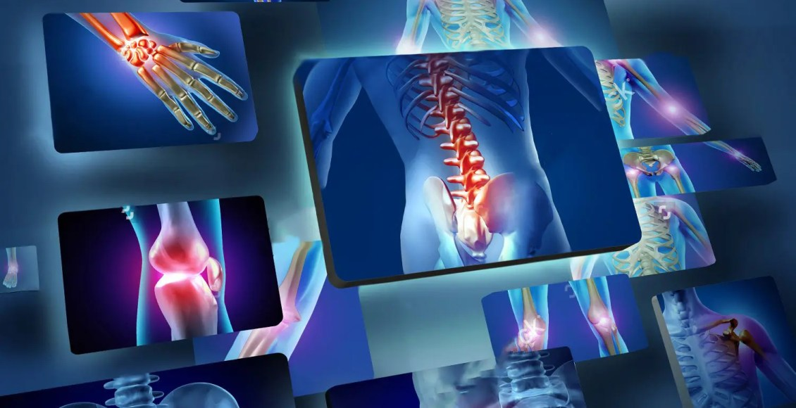 blog picture of joint inflammation