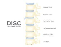 chiropractor spine-disc-degeneration-vector-back-bone-organ-anatomy