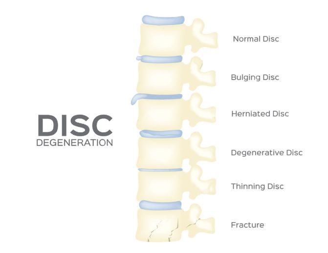 11860 Vista Del Sol Personal Spine Treatment Chiropractor El Paso, TX.