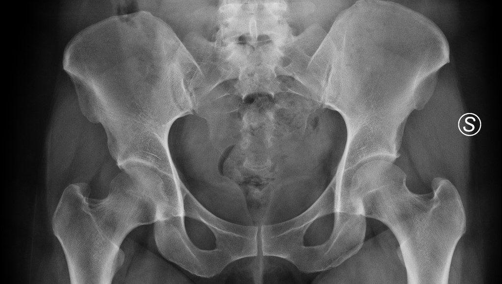 Osteitis Pubis Treatment | El Paso, TX Chiropractor