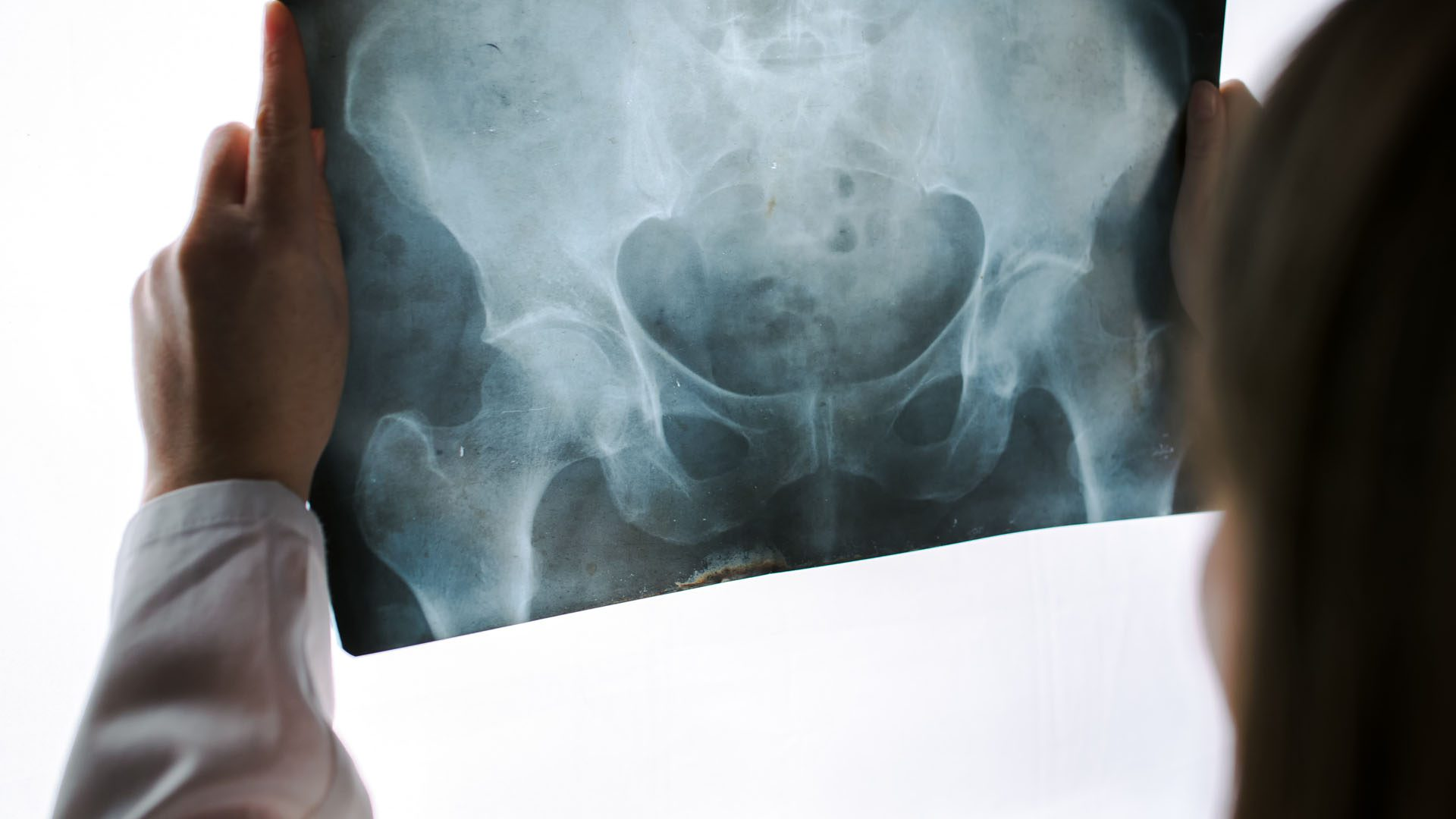 Diagnosis of Hip Complaints: Arthritis & Neoplasms Part I | El Paso, TX.