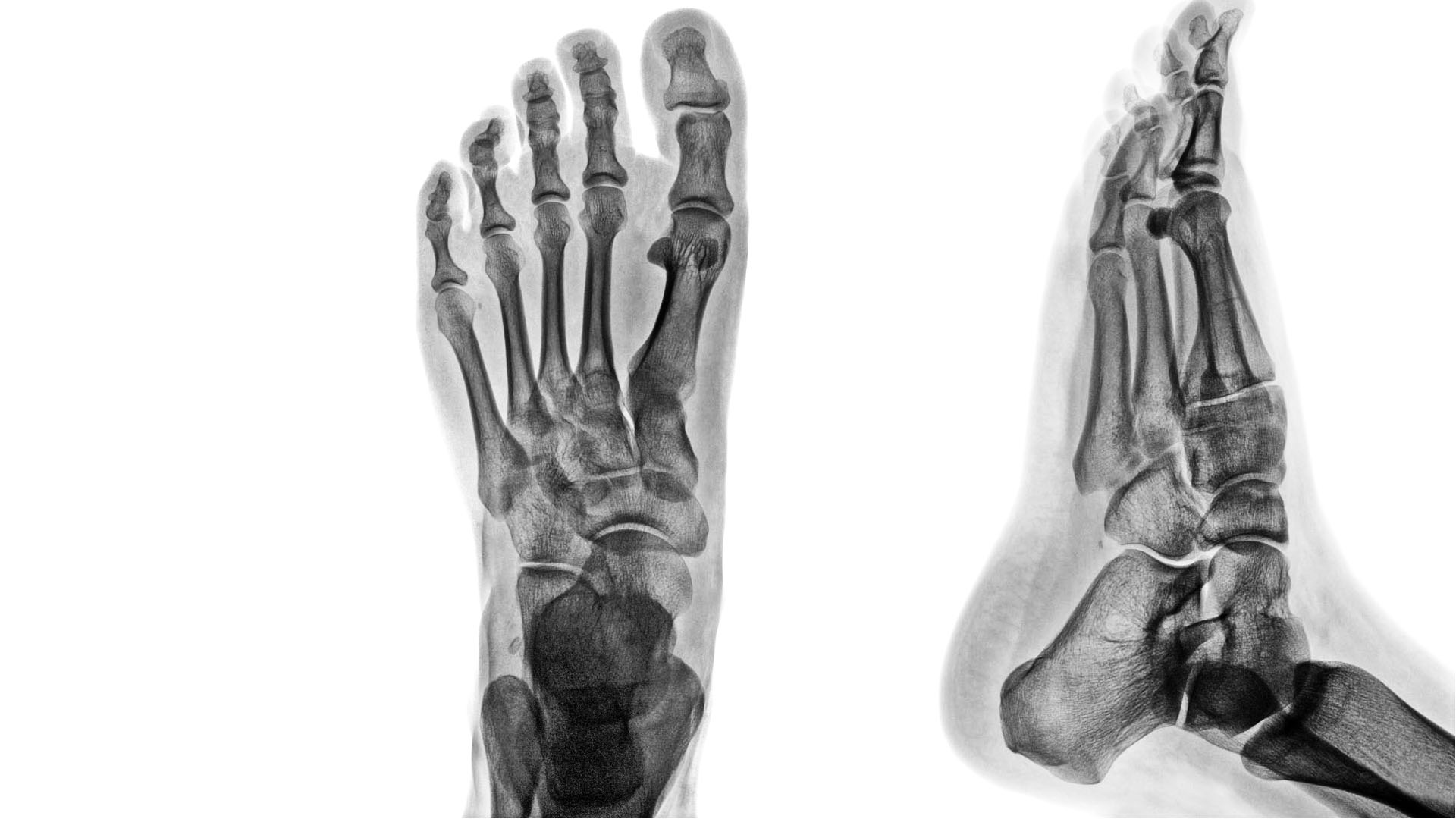 Ankle & Foot Diagnostic Imaging Arthritis & Trauma II| El Paso, TX.