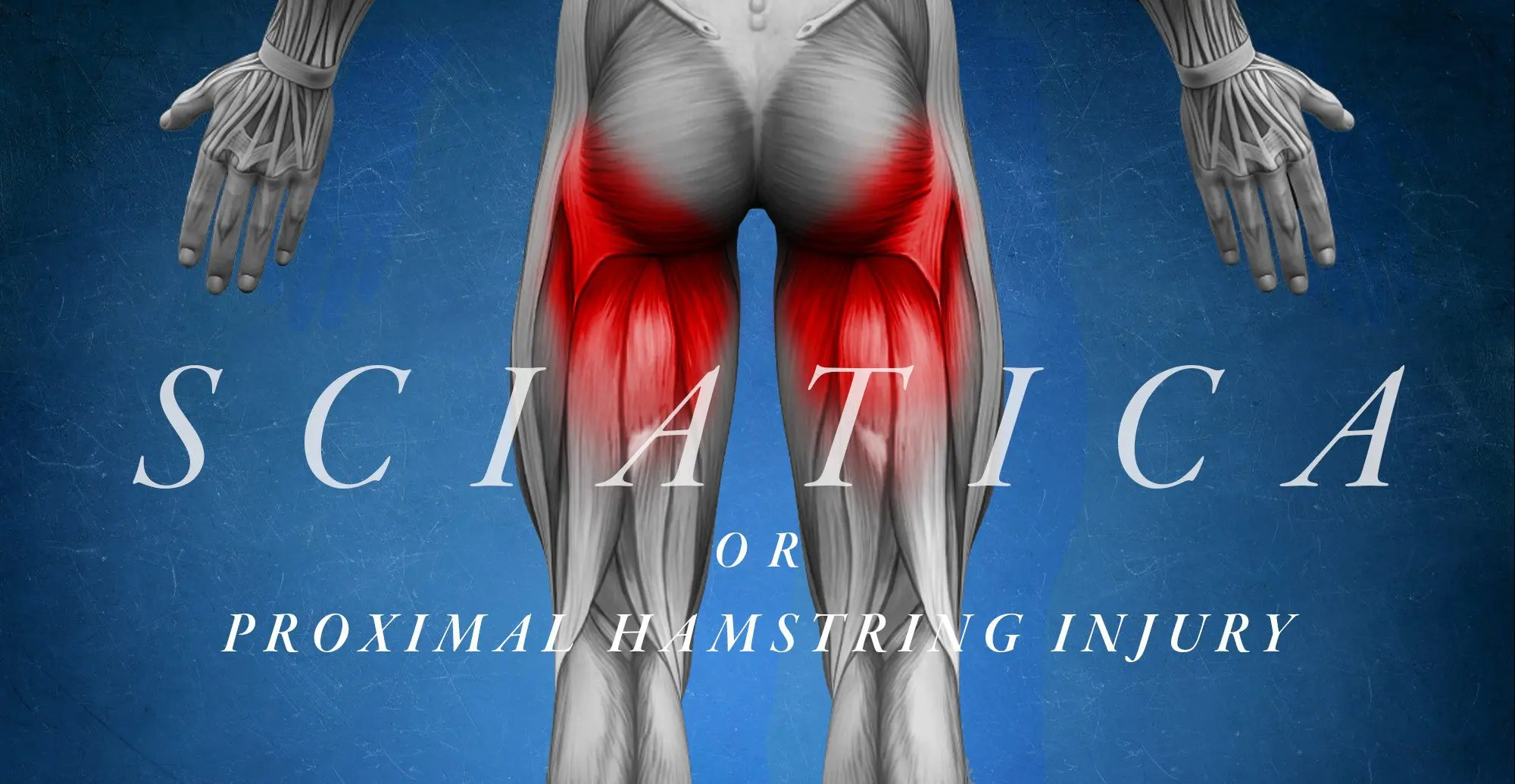 Sciatica or Proximal Hamstring Injury
