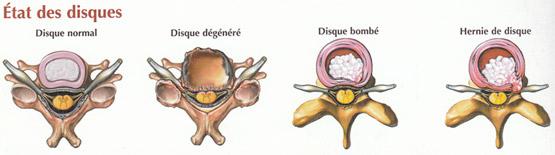 Hernie discale : symptômes, causes, diagnostic et traitement
