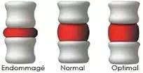 spine images