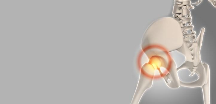 protheses de la hanche chirurgie