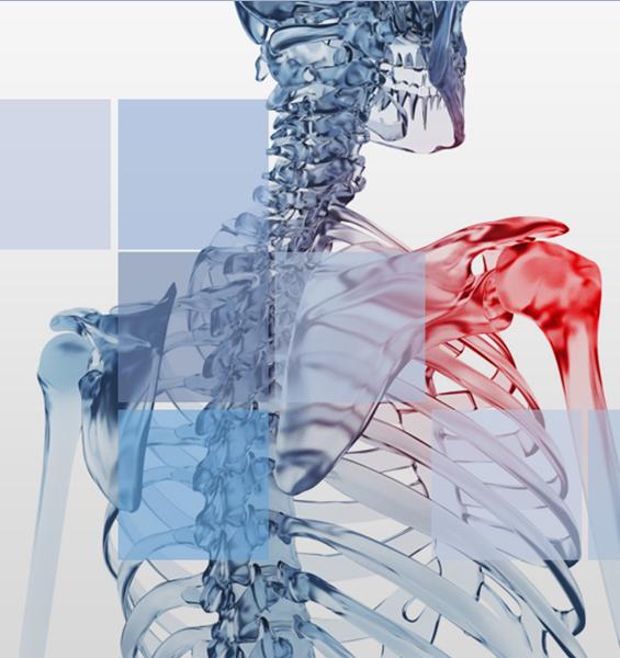 chirurgie de l' épaule à Nice