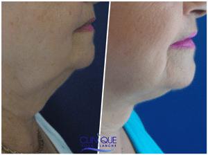 Double menton et bajoues chirurgie esthétique du visage
