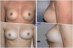 Lipomodelage des seins