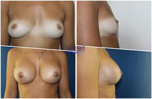 chirurgie esthétique du sein par prothèses mammaires
