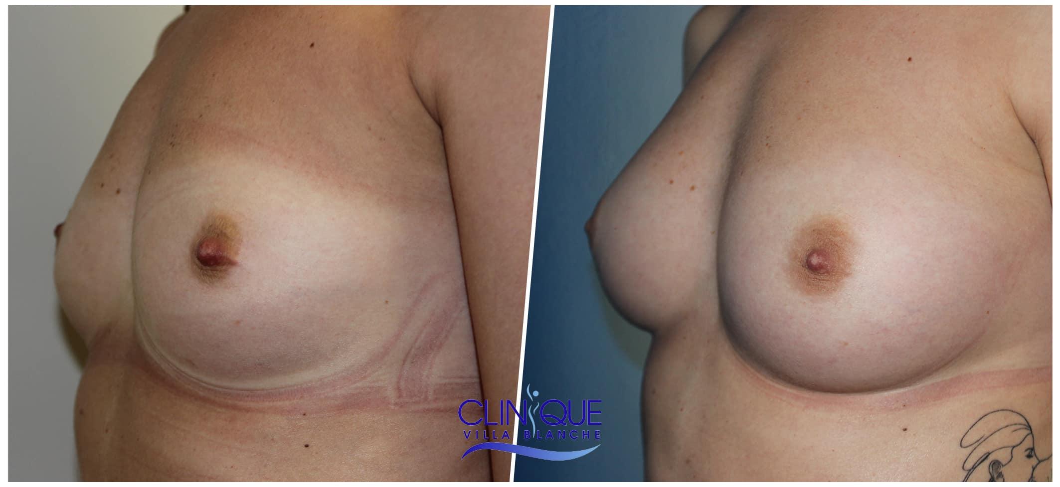 Lipofilling des seins - Augmentation mammaire