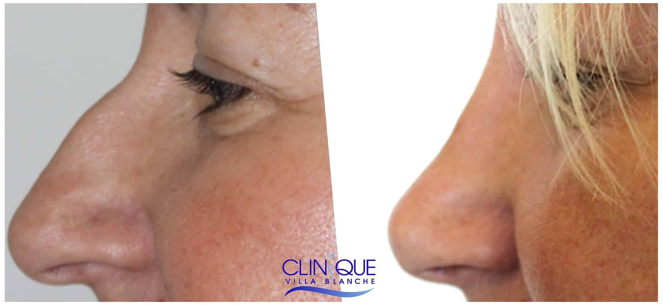 Rhinoplastie chirurgie esthétique du nez