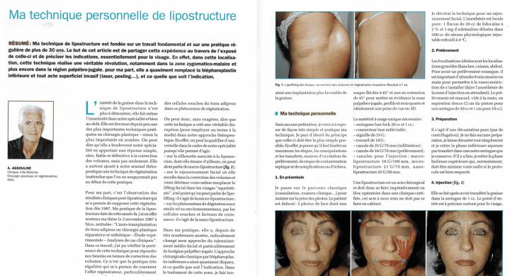 La lipostructure article docteur Alex Assouline