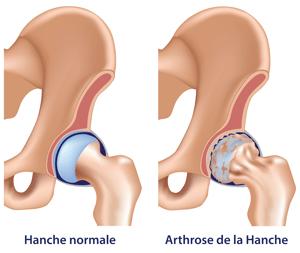 arthrose-de-la-hanche
