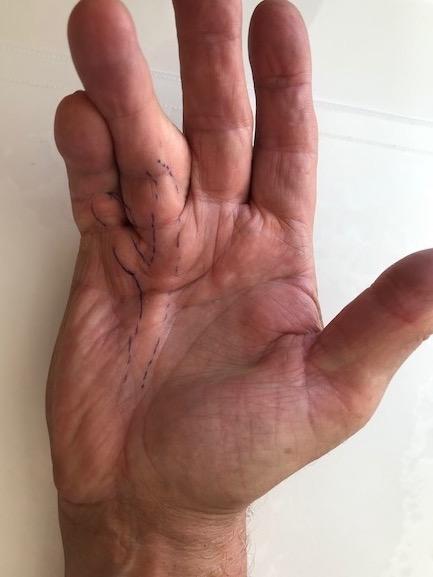 Dupuytren photo symptomes