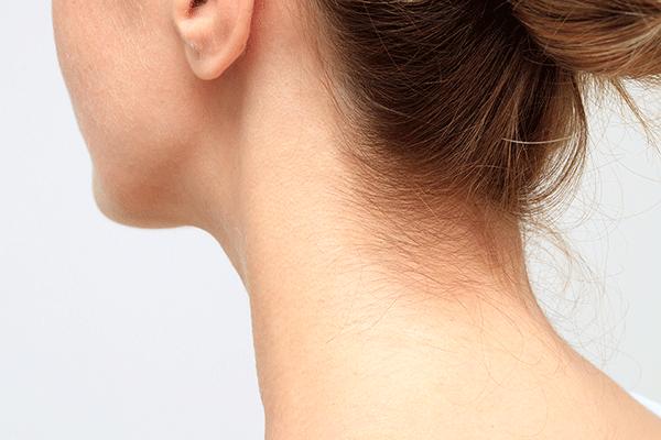 うなじ脱毛、おすすめサロンと自己処理の方法