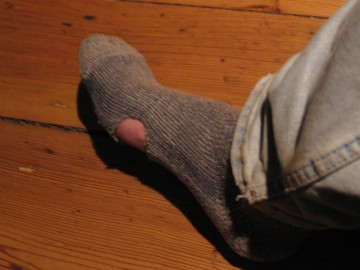 My burned sock.