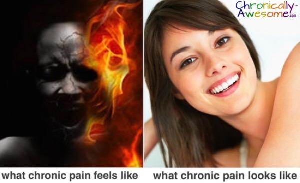 what chronic pain feels like (fire) vs what chronic pain looks like (happy girl)