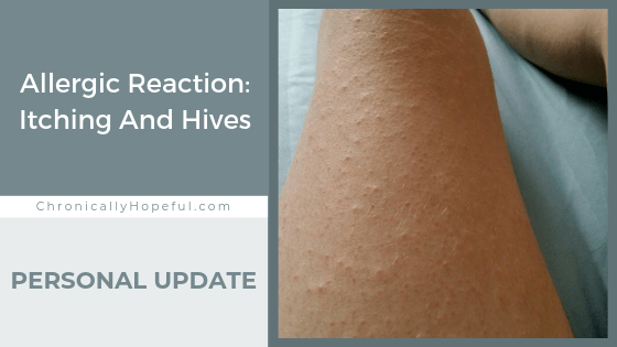 Char's legs covered in itchy bumps. Title reads: allergic reaction, itching and hives. Personal Update.