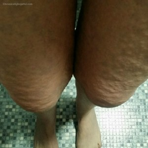 hives flaring on legs