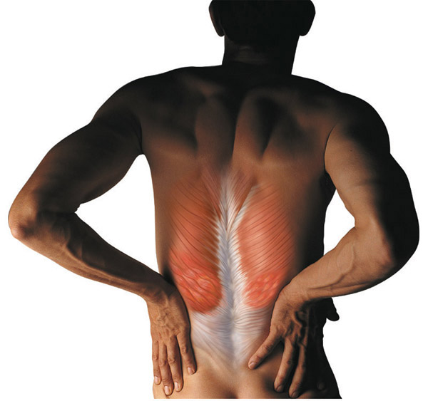 back spasms after epidural steroid injection
