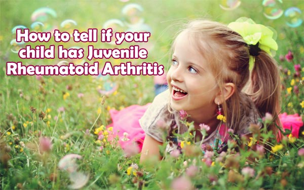 signs and symptoms of juvenile rheumatoid arthritis