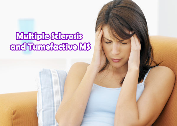 tumefactive multiple sclerosis symptoms