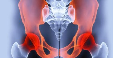 Pelvic Pain Causes and Treatments in Women and Men