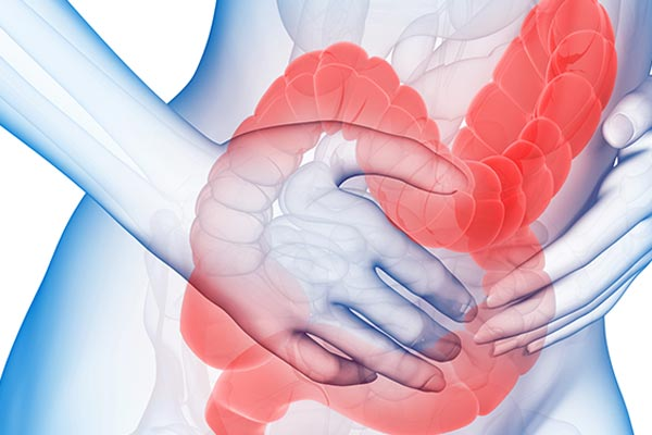 What Are The Most Common IBS Flare Up Symptoms