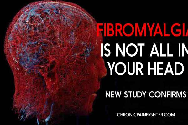 Fibromyalgia is Not All In Your Head, New Study Confirms