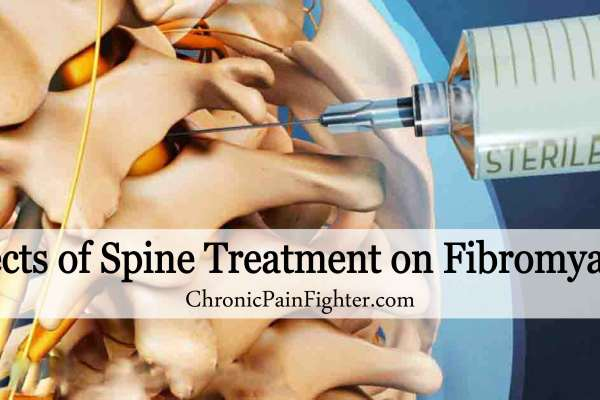Effects of Spine Treatment on Fibromyalgia