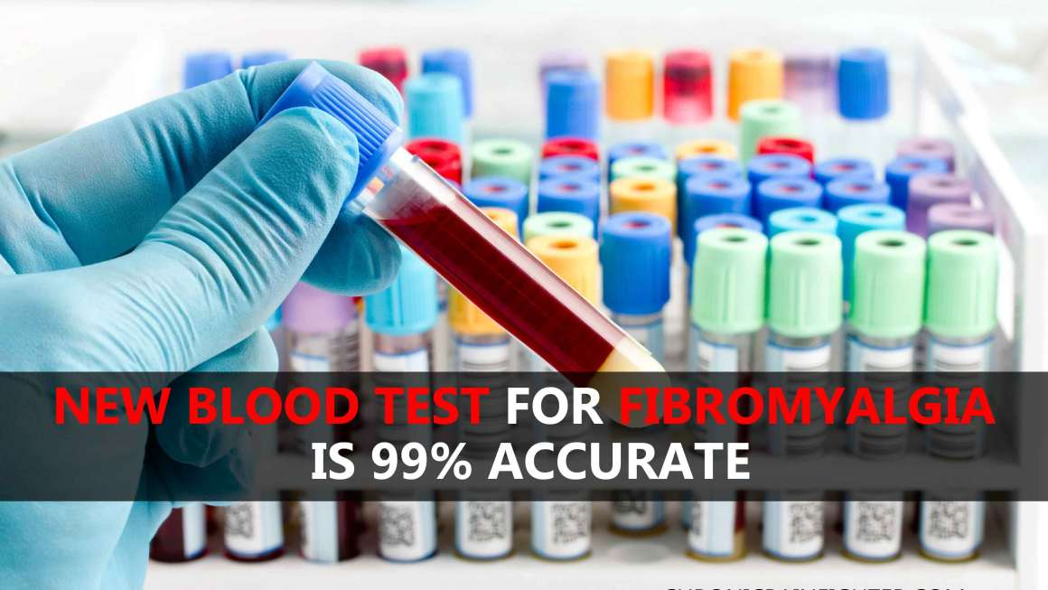 New Blood Test for Fibromyalgia Is 99% Accurate