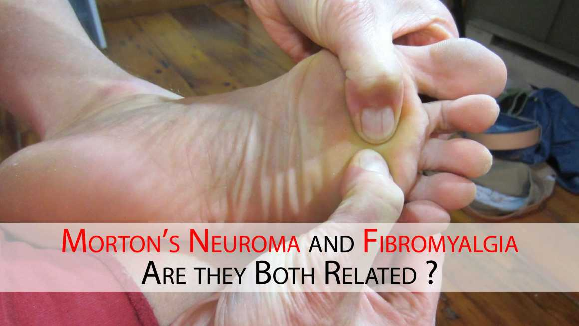 Morton's Neuroma and Fibromyalgia. Are they Both Related ?