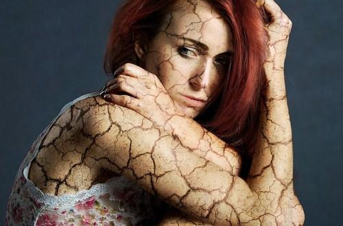 8 Ways To Control Your Itchy Fibromyalgia Rash