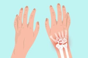 Arthritis in Your Wrist: Signs of Wrist Arthritis and What to Do About It