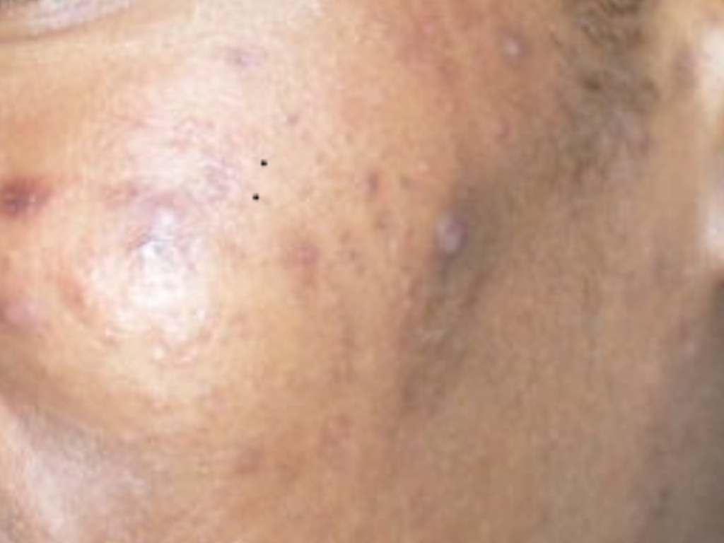 cicatrices d'acné, que faire?