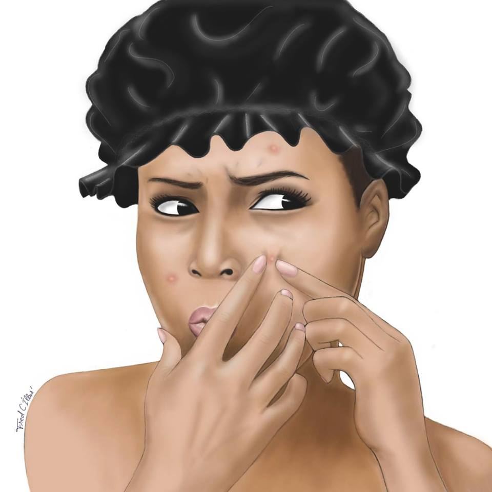 Les vertus du beurre de karite contre l'acné