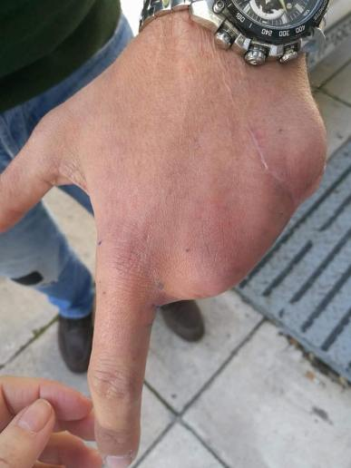 silicone fingers (1)