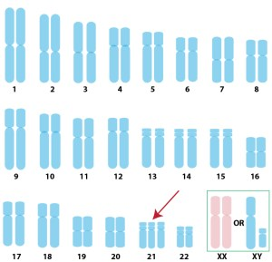 karyotype_T21